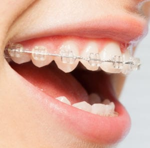 Orthodontics Correction Of Jaws With Clear Bracket