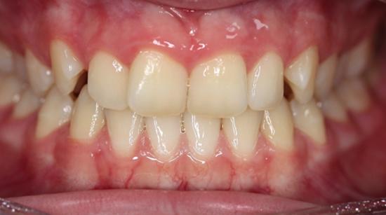 Before Invisalign treatment at Landmark dental