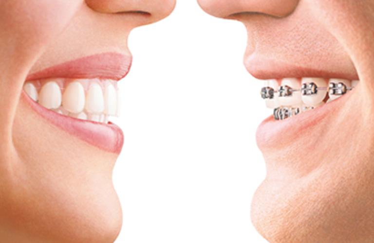 invisalign-v-braces