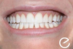 Englighten Teeth Whitening Results