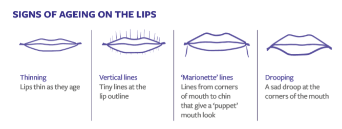 Signs of lip ageing