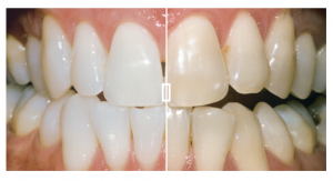Teeth whitening before and after in Hemel Hempstead
