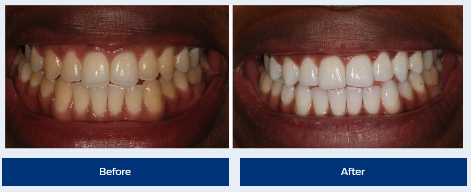 zoom teeth whitening hemel